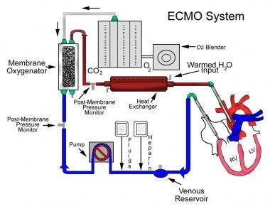 Extracorporeal membrane oxygenation (ECMO) system.