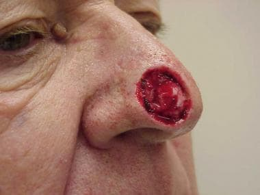 A nasal tip wound located medially (same patient a