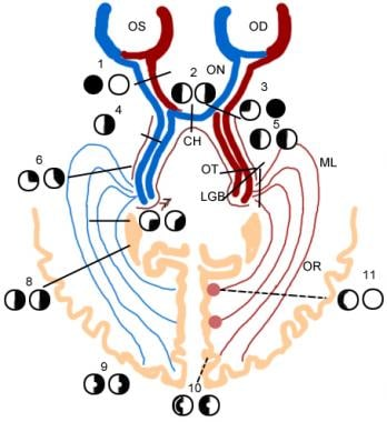 Schematic representation of visual system.