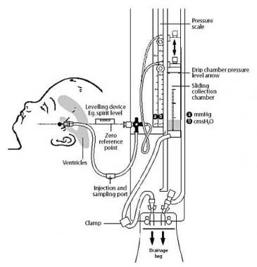 Diagram illustrating ventricular drainage system.