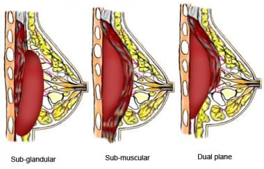 Subglandular, submuscular, and dual-plane breast i