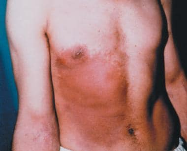 Early erythema 11 days after exposure. Image court