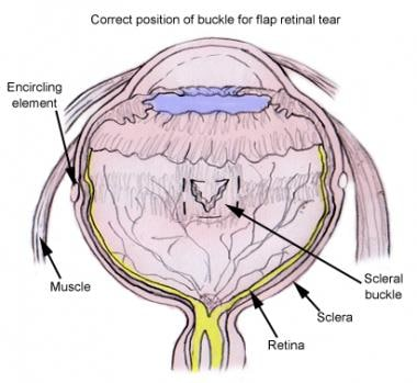 Placement of buckling material beneath retinal bre