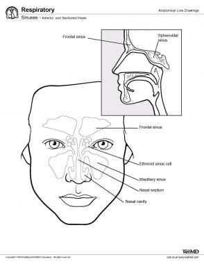 Sinuses, anterior and sectioned views.