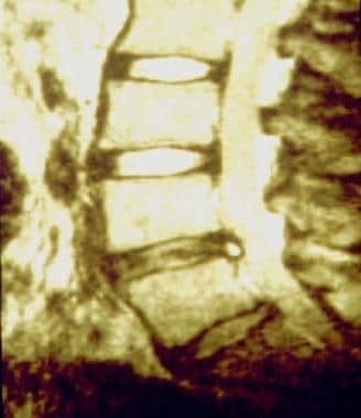 Sagittal view MRI showing high-intensity zone.