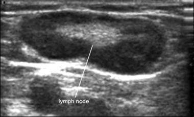 Ultrasound image of a lymph node with its characte
