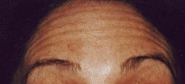 Contraction of the frontalis muscle is responsible