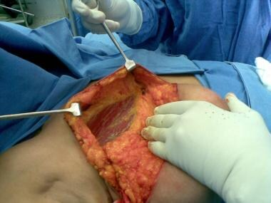 Raised superior flap, with breast being dissected