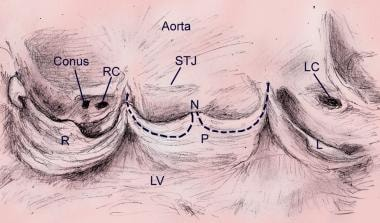 This image shows an opened aortic valve demonstrat