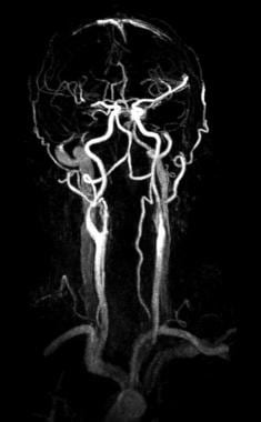Arteries to the brain on magnetic resonance angiog