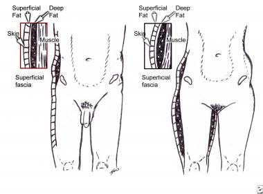 Anatomy of the superficial fascial system in males
