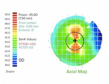 Example of placido based corneal topography. This