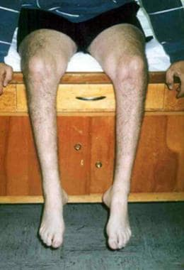 Example of Charcot-Marie-Tooth disease (ie, perone