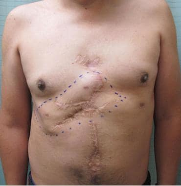 Forty-six-year-old patient with chest wall recurre