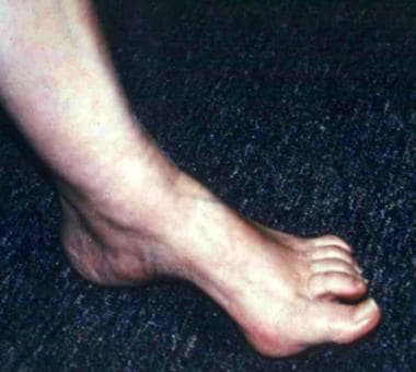 Pes cavus deformity can be associated with many co