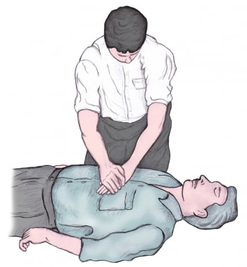 Delivery of chest compressions. Note the overlappi