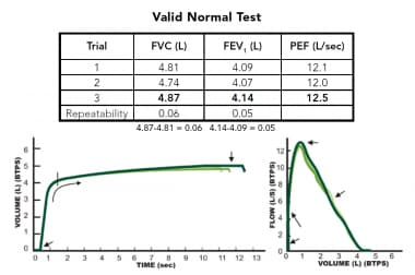 Example of an acceptable spirometry testing sessio