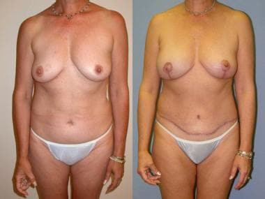 Before and after right skin-sparing mastectomy for