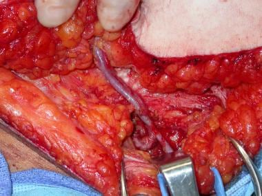 Superficial inferior epigastric vessels dissected