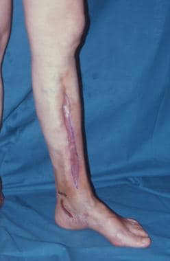Clinical Case 4. Osteomyelitis of the middle third