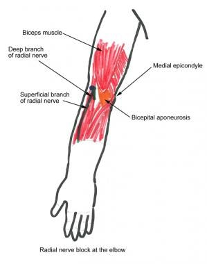 Radial nerve block at the elbow.