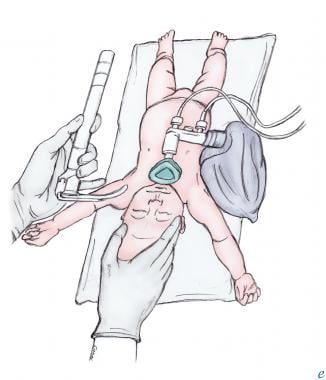 Positioning of infant for intubation.