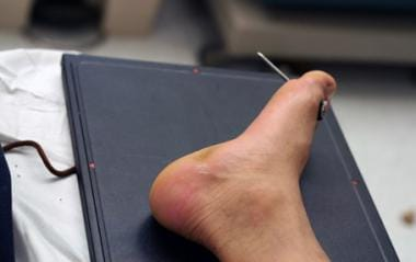 Nail embedded in the foot, propelled by nail gun t