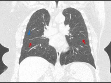 CT scan of chest (coronal view). Blue arrow points
