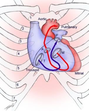Surface anatomy of the heart. A = aortic valve; M