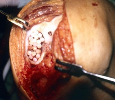 Lesions of the femoral condyle up to 8.5 cm2 have