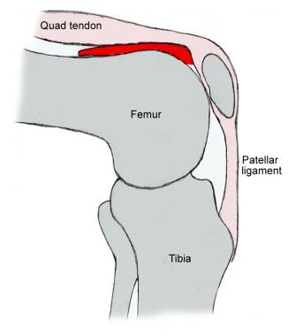 Illustration of knee joint. Note suprapatellar rec