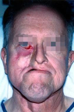 This patient, who underwent previous free flap clo