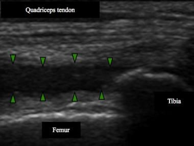 Note knee effusion in suprapatellar recess (bounde