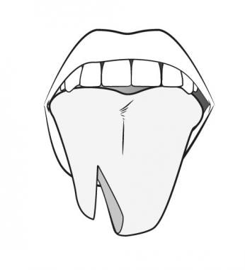 Bisected tongue.