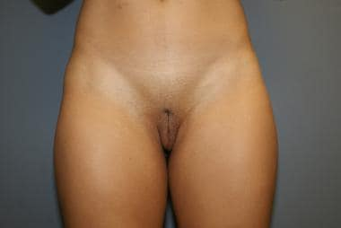 Increased labia majora due to ptosis, which can in