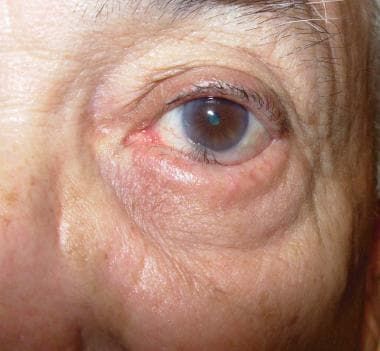 Patient has involutional entropion with dehiscence
