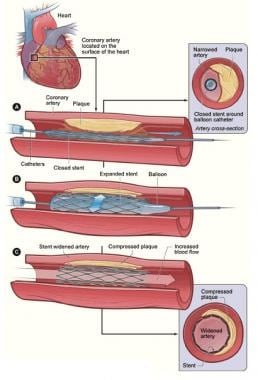 Deployment of stent in area of significant stenosi