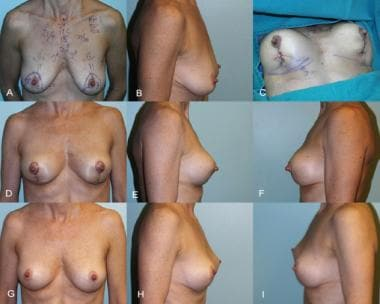 Simplified vertical mastopexy. A and B, Before mas