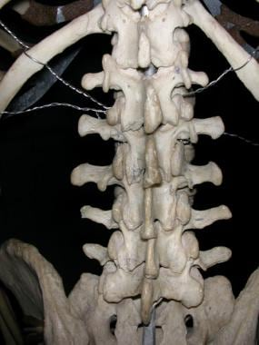 Lumbar spine, as seen from behind.