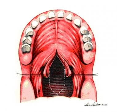 Soft palate flaps are retracted.