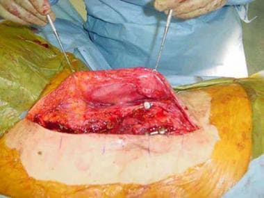 Expanded flap prior to closure of soft tissue defe