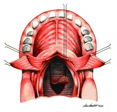 Pharyngeal flap is plotted with indelible ink and