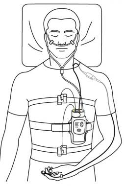 Typical set-up for home sleep test. Image courtesy