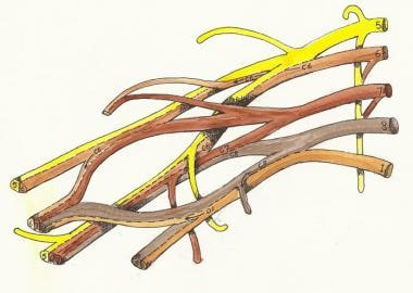 Unlabelled brachial plexus (for studying).