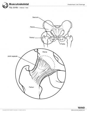 Illustration of normal hip anatomy.