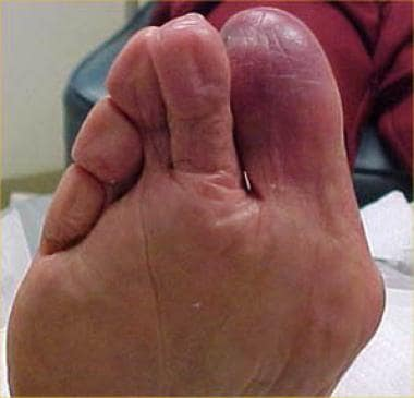 Cyanosis of the first toe and dependent rubor of t