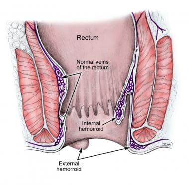 Hemorrhoids. Image reproduced from original with p