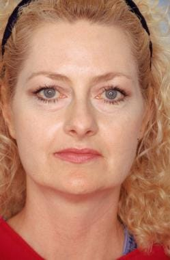Midface facelift. Before: anteroposterior view. Th