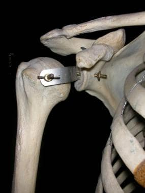 Shoulder: highly mobile ball-and-socket joint with