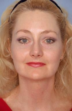 Midface facelift. After: anteroposterior view. Pat